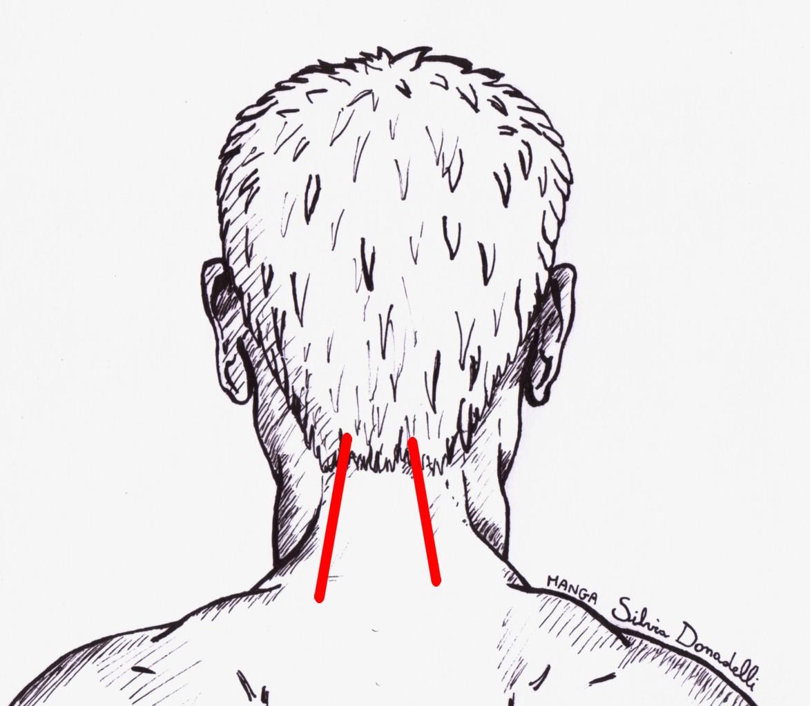 Dolore cervicale dolore di testa cefalea agli occhi for Mal di testa da cervicale quanto puo durare